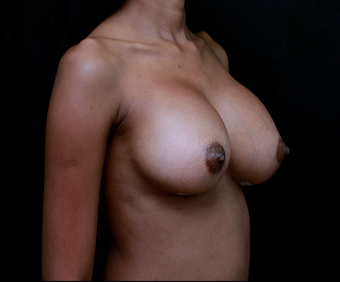 18-24 year old woman treated with Breast Implant Revision after 3735149