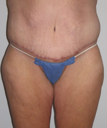 42 Year Old Woman with Tummy Tuck and Body Lift after 1011069