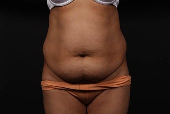 Abdominoplasty (Tummy Tuck) before 437370