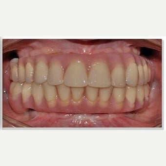 55-64 year old woman treated with All-on-4 Dental Implants after 2640819
