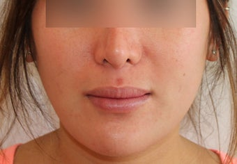 Lip Implant after 944167