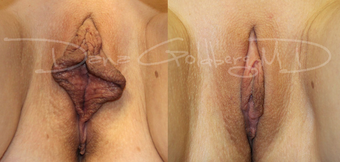 Labiaplasty before 1745663
