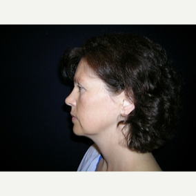 45 year old woman treated with Facelift before 3839626