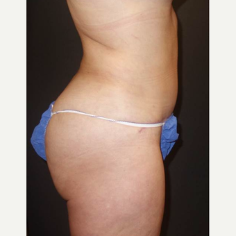 35-44 year old woman treated with Brazilian Butt Lift after 3489179