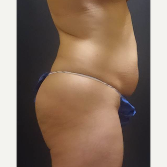35-44 year old woman treated with Brazilian Butt Lift before 3489179