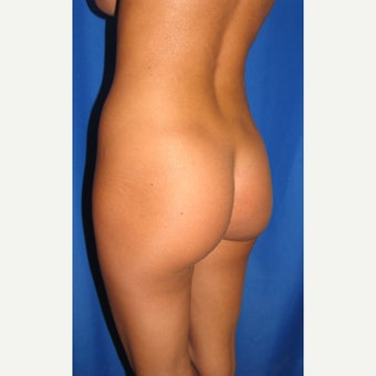 18-24 year old woman treated for butt augmentation with implants 1852111