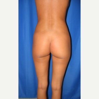 18-24 year old woman treated for butt augmentation with implants before 1852111
