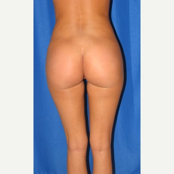 18-24 year old woman treated for butt augmentation with implants after 1852111