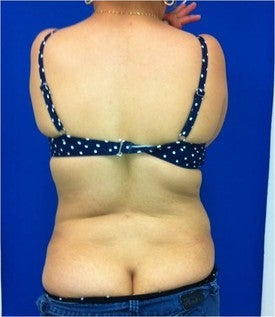 Laser Liposuction 561232