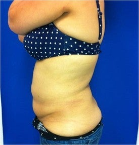 Laser Liposuction after 561232