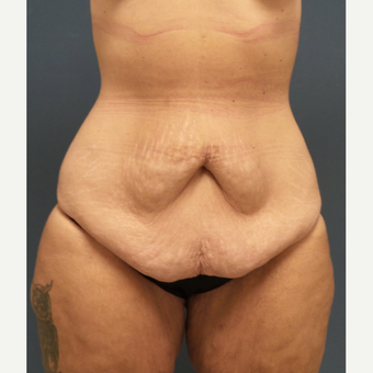 35-44 year old woman treated with Drainless Tummy Tuck with liposuction