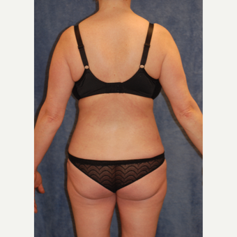 45-54 year old woman treated with Tummy Tuck after 2850071