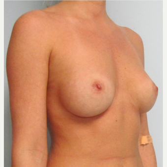 Mentor Breast Implants for this 28 Year Old Woman before 3030461