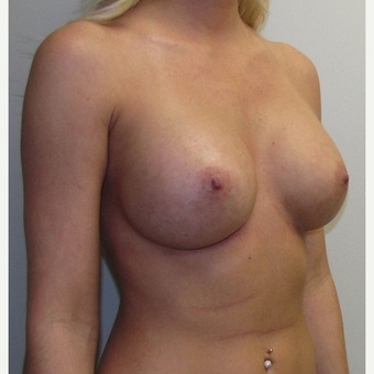 Mentor Breast Implants for this 28 Year Old Woman after 3030461