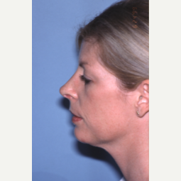 25-34 year old woman treated with Rhinoplasty after 2993831