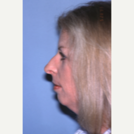 25-34 year old woman treated with Rhinoplasty before 2993831