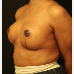 45-54 year old woman treated with Breast Lift after 3742383