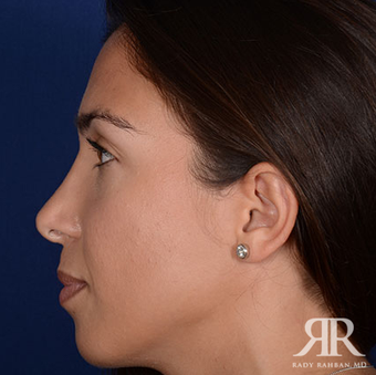 Rhinoplasty after 1357421