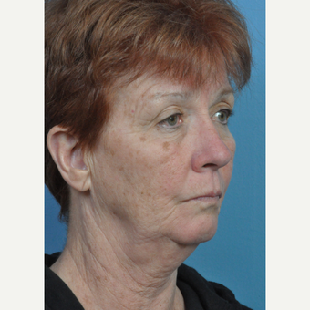 65-74 year old woman treated with Facelift before 3696825