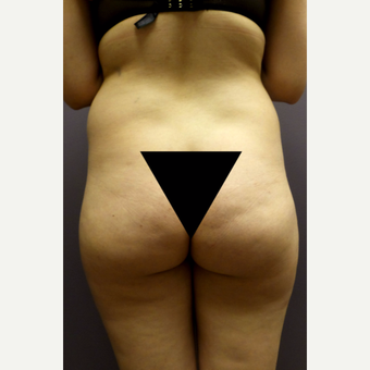 18-24 year old woman treated with Brazilian Butt Lift before 3590021
