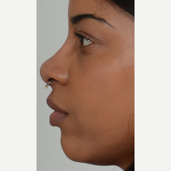 18-24 year old African American woman treated with Non Surgical Nose Job