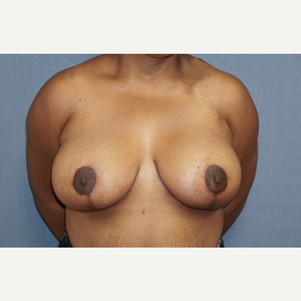35-44 year old woman treated with Breast Lift after 3726851