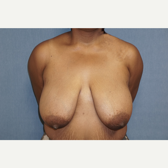 35-44 year old woman treated with Breast Lift before 3726851