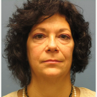 55-64 year old woman treated with Eyelid Surgery before 3100748