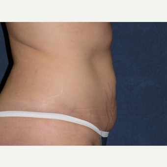 35-44 year old woman treated with Tummy Tuck & Liposuction Hips before 3453664