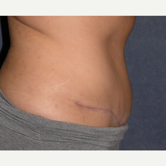 35-44 year old woman treated with Tummy Tuck & Liposuction Hips after 3453664