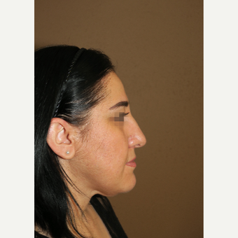 35-44 year old woman treated with Rhinoplasty before 3384306
