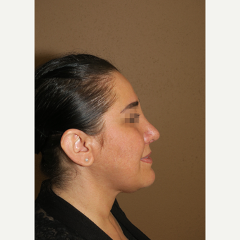 35-44 year old woman treated with Rhinoplasty after 3384306