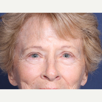65-74 year old woman treated with Eyelid Surgery after 3180295
