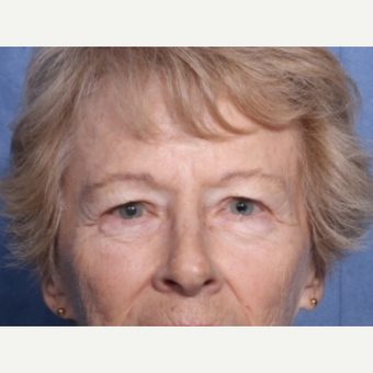 65-74 year old woman treated with Eyelid Surgery before 3180295