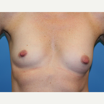 37 year old woman treated with Breast Augmentation before 3486848