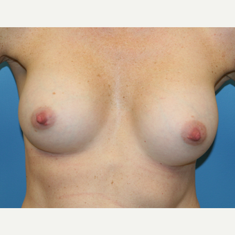 37 year old woman treated with Breast Augmentation after 3486848