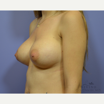 25-34 year old woman treated with Breast Augmentation before 3419032