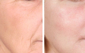 TCA Chemical Peel with 35% TCA before 6345