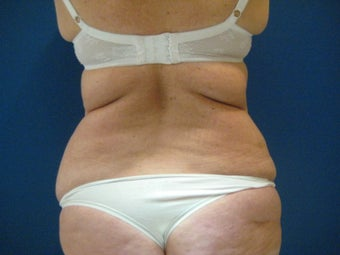 Laser Liposuction - Flanks before 1058511