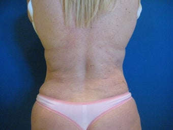 Laser Liposuction - Flanks after 1058511