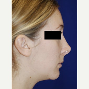 18-24 year old woman treated with Revision Rhinoplasty before 2656714