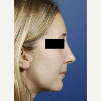 18-24 year old woman treated with Revision Rhinoplasty after 2656714