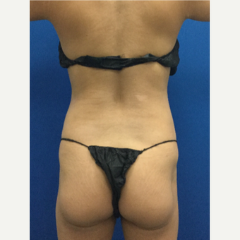 Liposuction of the waist and back with Fat-Transfer before 3071882