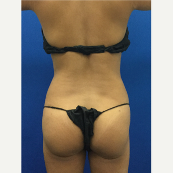 Liposuction of the waist and back with Fat-Transfer after 3071882