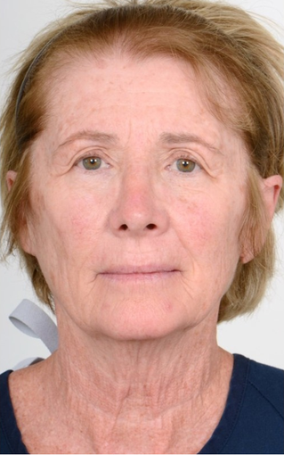 55-64 year old woman treated with Eyelid Surgery before 1563958