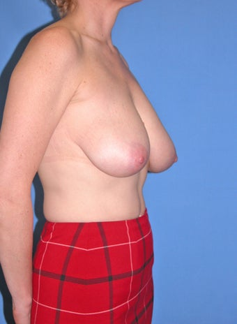 45-54 year old woman treated with Breast Reduction 2447809
