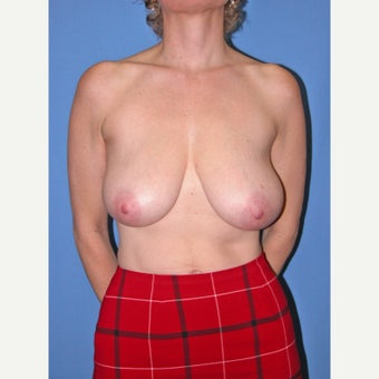 45-54 year old woman treated with Breast Reduction before 2447809