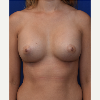 25-34 year old woman treated with Breast Augmentation after 3661531