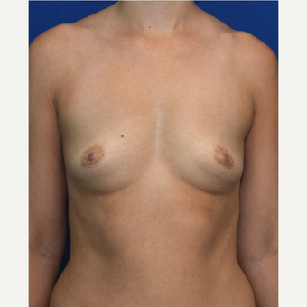25-34 year old woman treated with Breast Augmentation before 3661531
