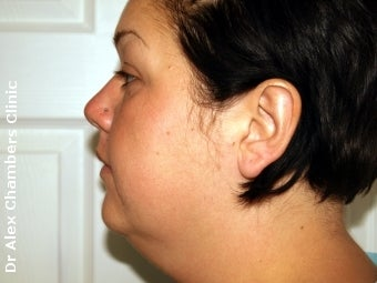 Vaser Lipo + Thread Lift to Eliminate Double Chin before 947505